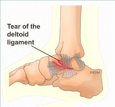 Deltoid Ligament Test