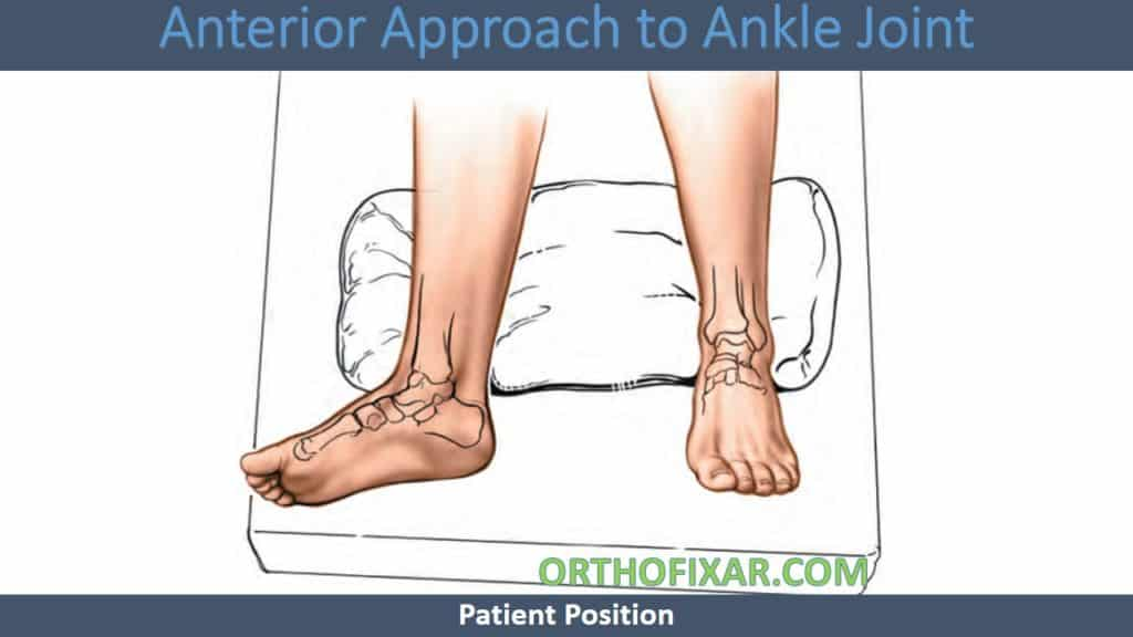 Anterior Approach to Ankle Joint