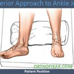 ankle Anterior Approach