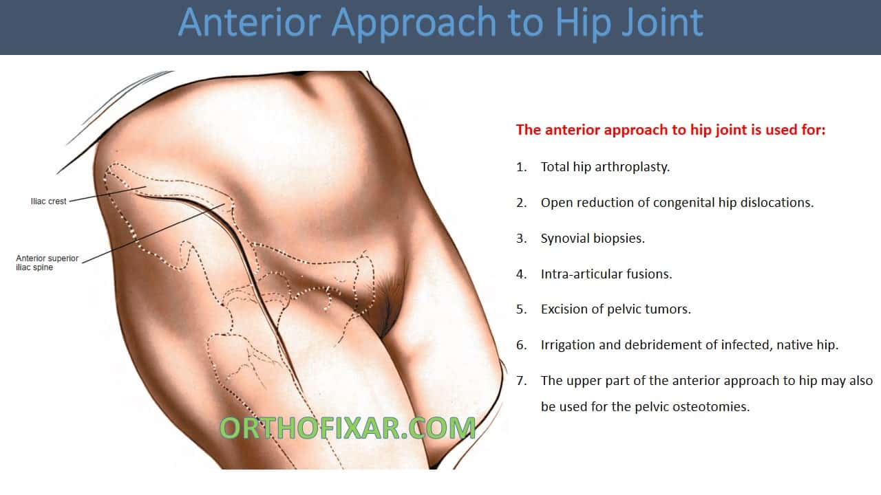 Anterior Approach to Hip Joint