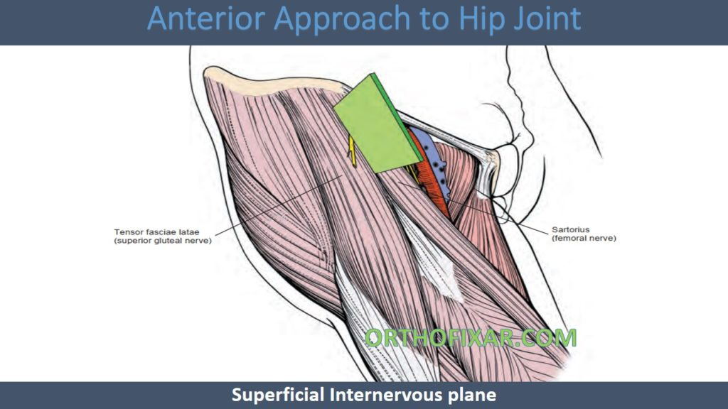 Anterior Approach to Hip - Smith-Petersen approach Joint