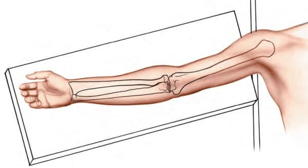 Anterior Approach to Humerus Shaft patient position