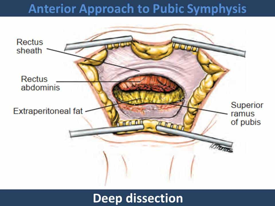 Anterior Approach to Pubic Symphysis