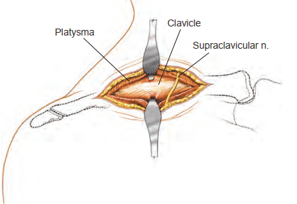 Anterior Approach to the Clavicle