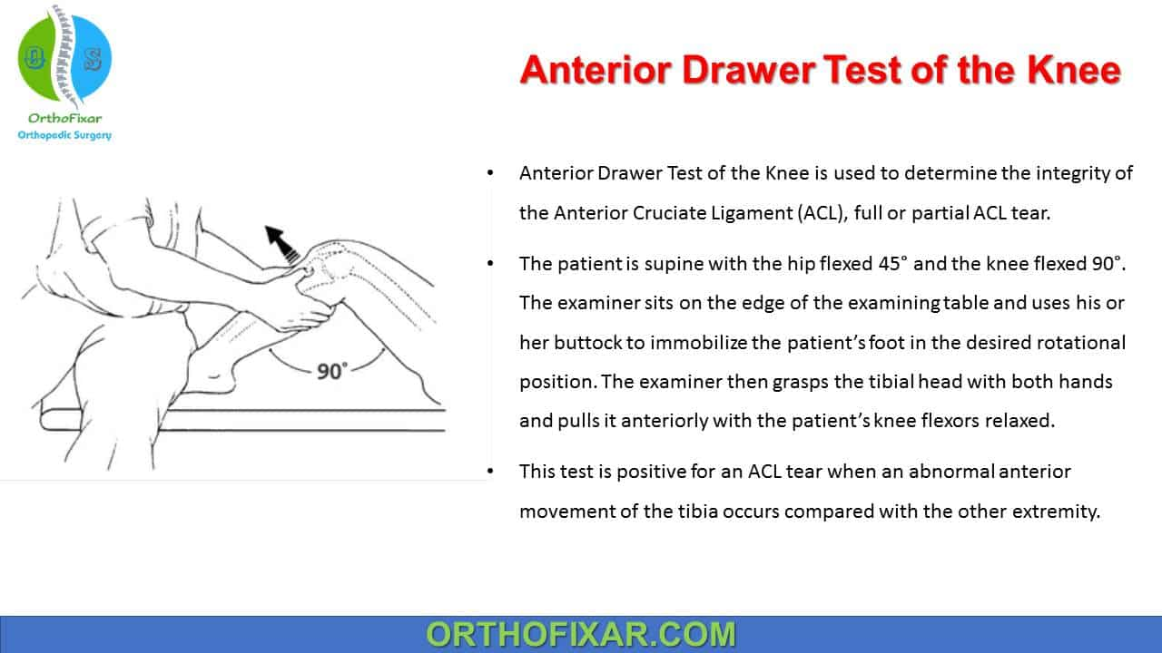 Anterior Drawer Test of the Knee