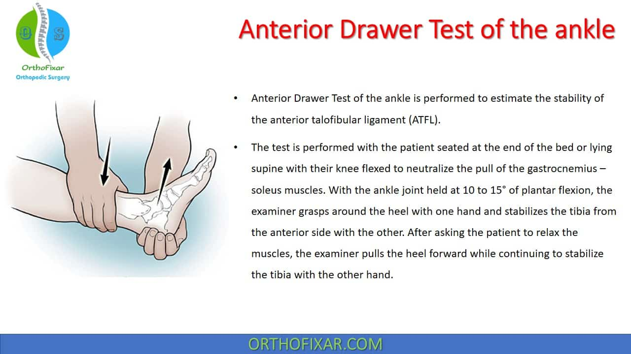 Anterior Drawer Test of the ankle