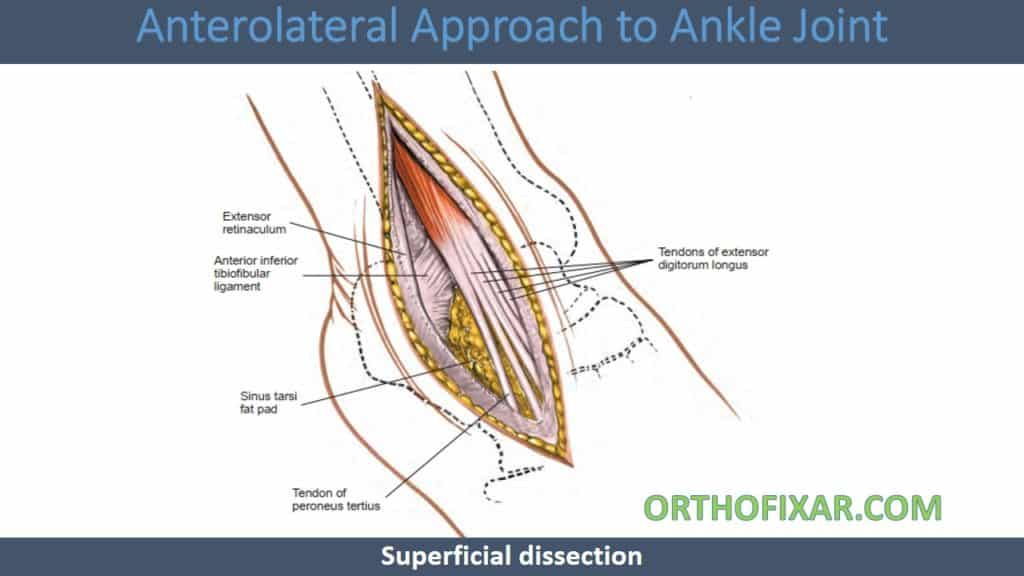 Anterolateral Approach to Ankle Joint
