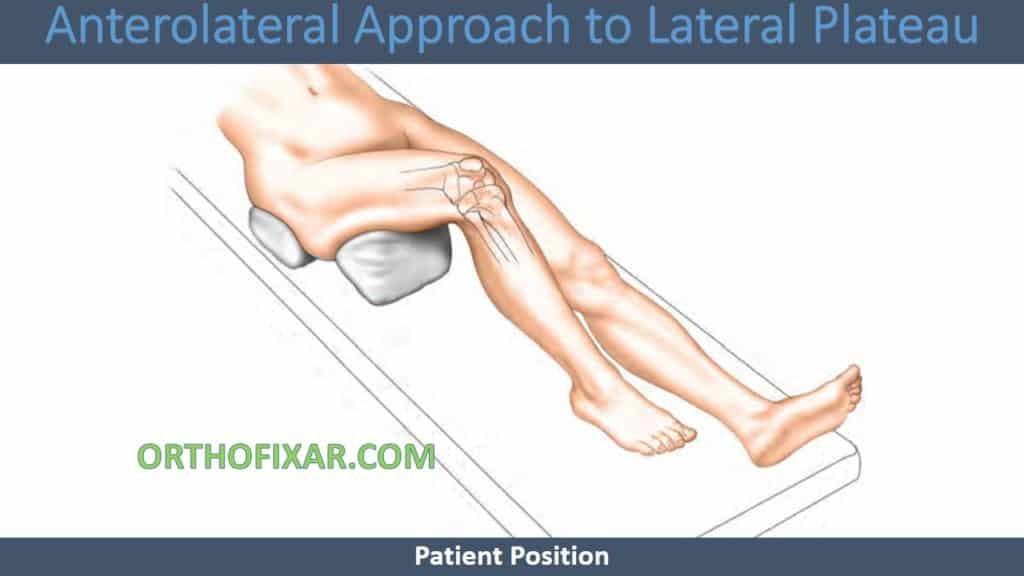 Anterolateral Approach to Lateral Plateau