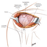 Anterolateral Approach to the shoulder