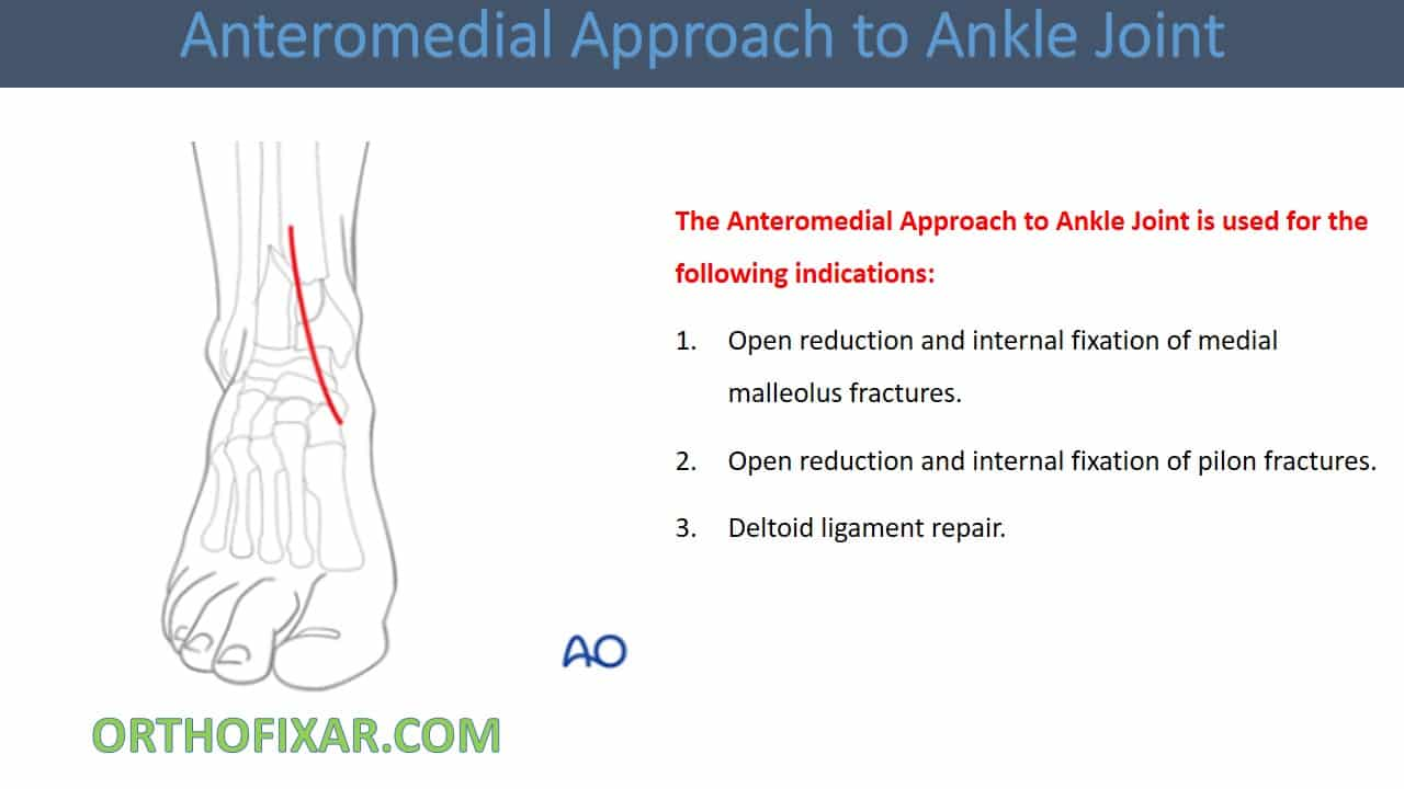 Anteromedial Approach to Ankle Joint
