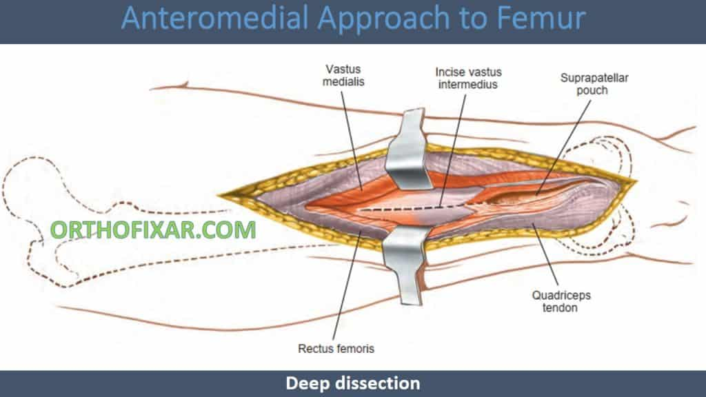 Anteromedial Approach to Femur
