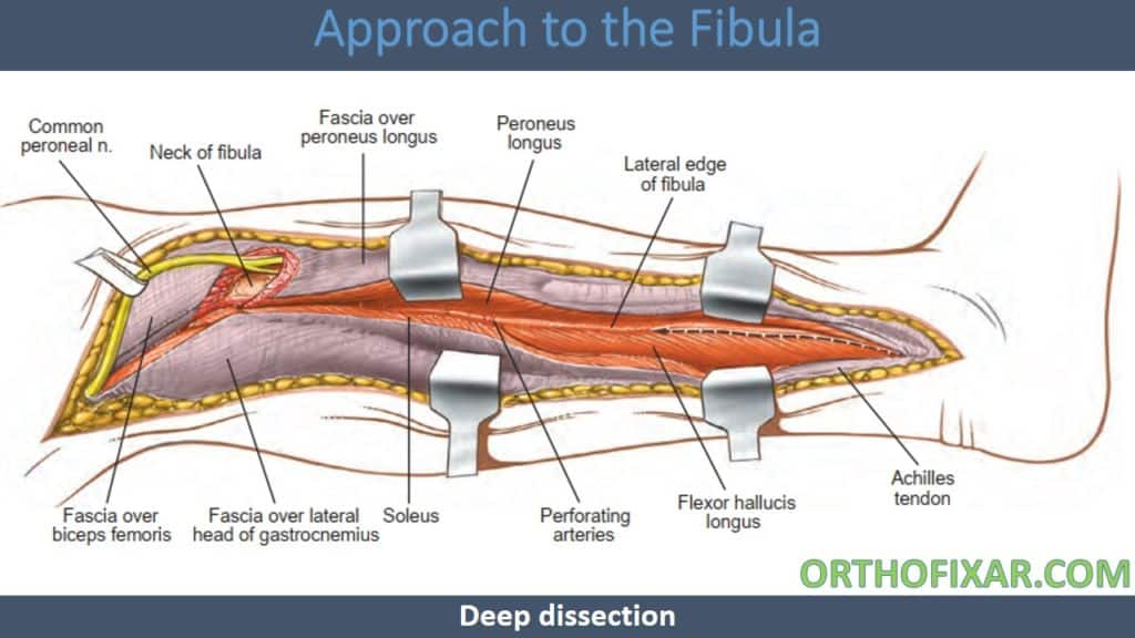 Approach to the Fibula