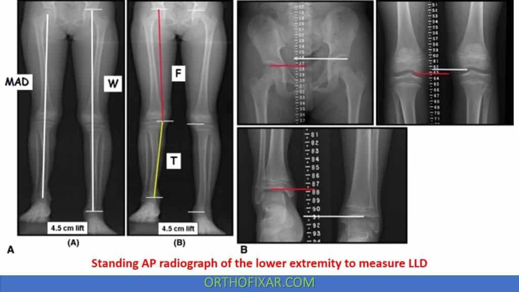 Assessing Leg length Difference LLD