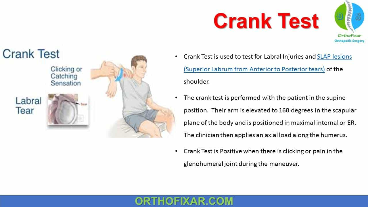 Crank Test