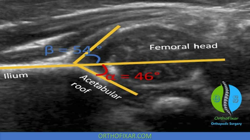 Developmental dysplasia of the hip