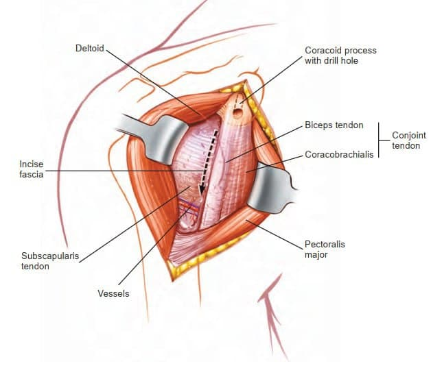 Deltopectoral Approach to the Shoulder
