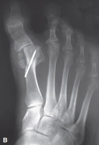 tibial sesamoid Dislocation