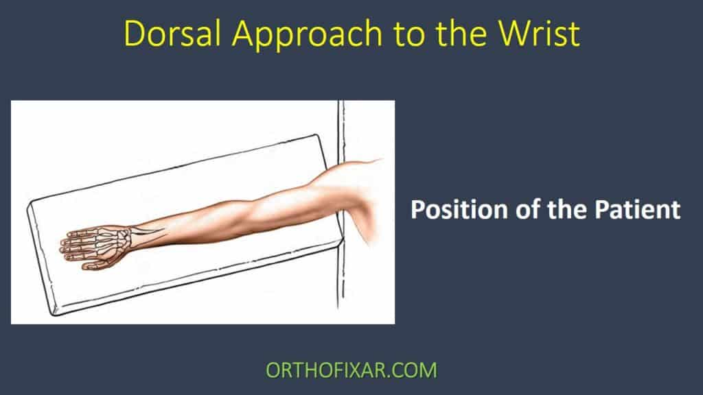 Dorsal Approach to the Wrist