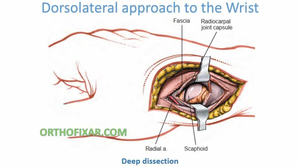 Dorsolateral approach to the Wrist