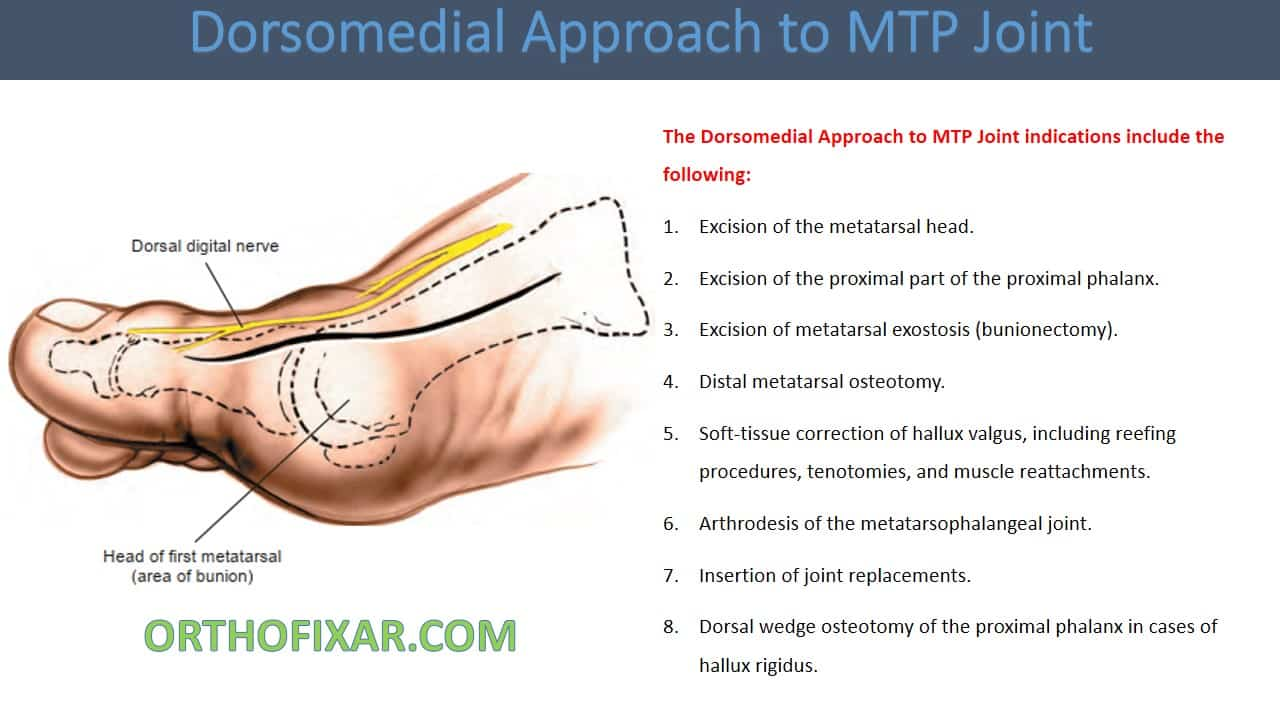 Dorsomedial Approach to MTP Joint