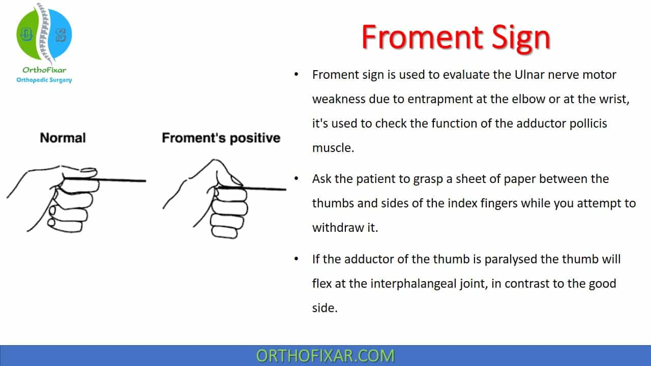 Froment Sign