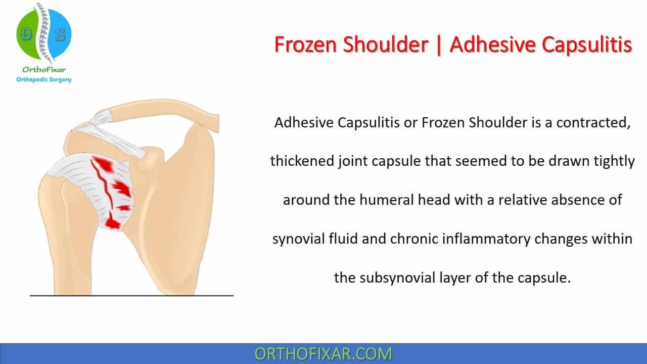 Frozen Shoulder | Adhesive Capsulitis