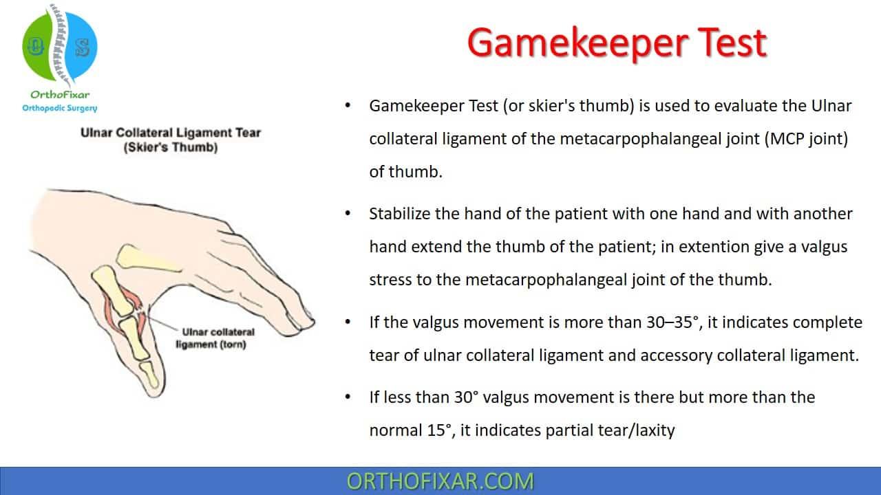 Gamekeeper Test