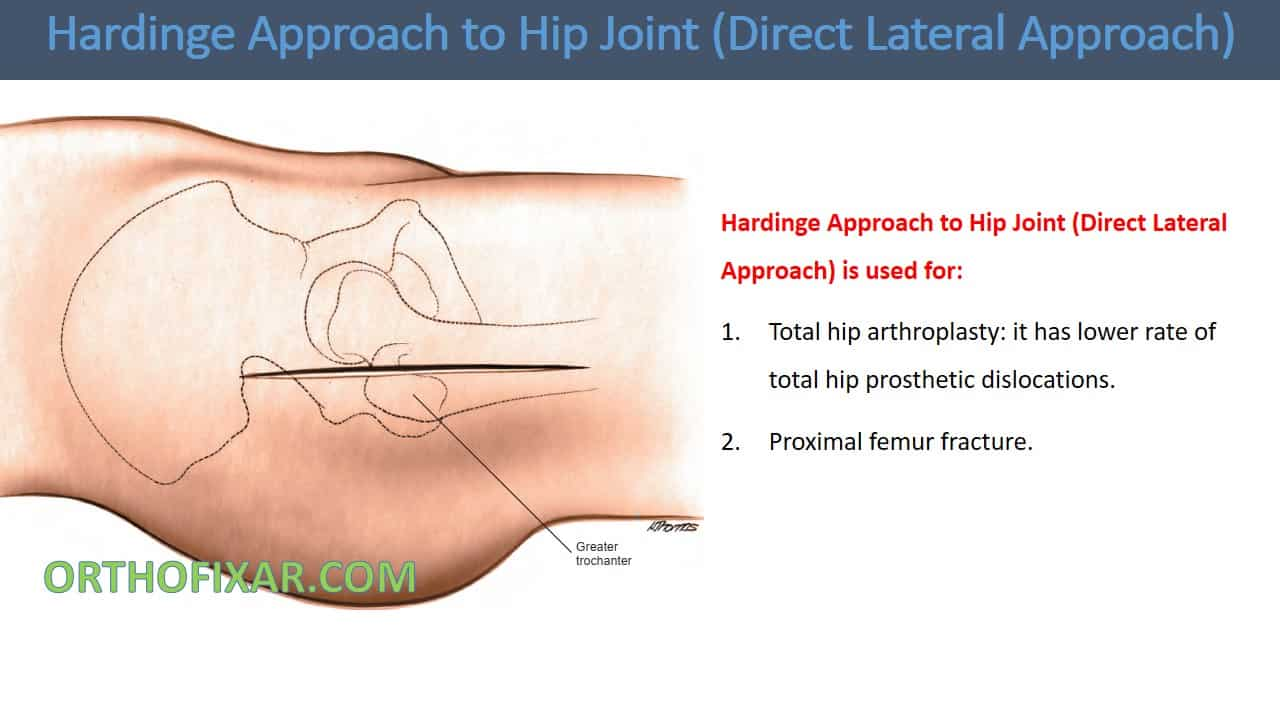 Hardinge Approach to Hip Joint (Direct Lateral Approach)