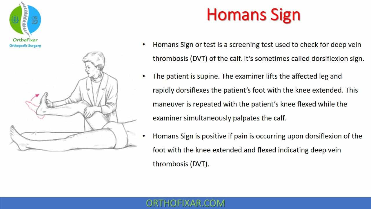Homans Sign | DVT Test