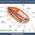 Ilioinguinal Approach to Acetabulum