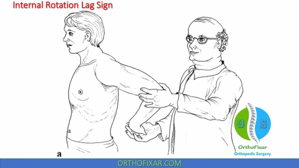 Internal Rotation Lag Sign