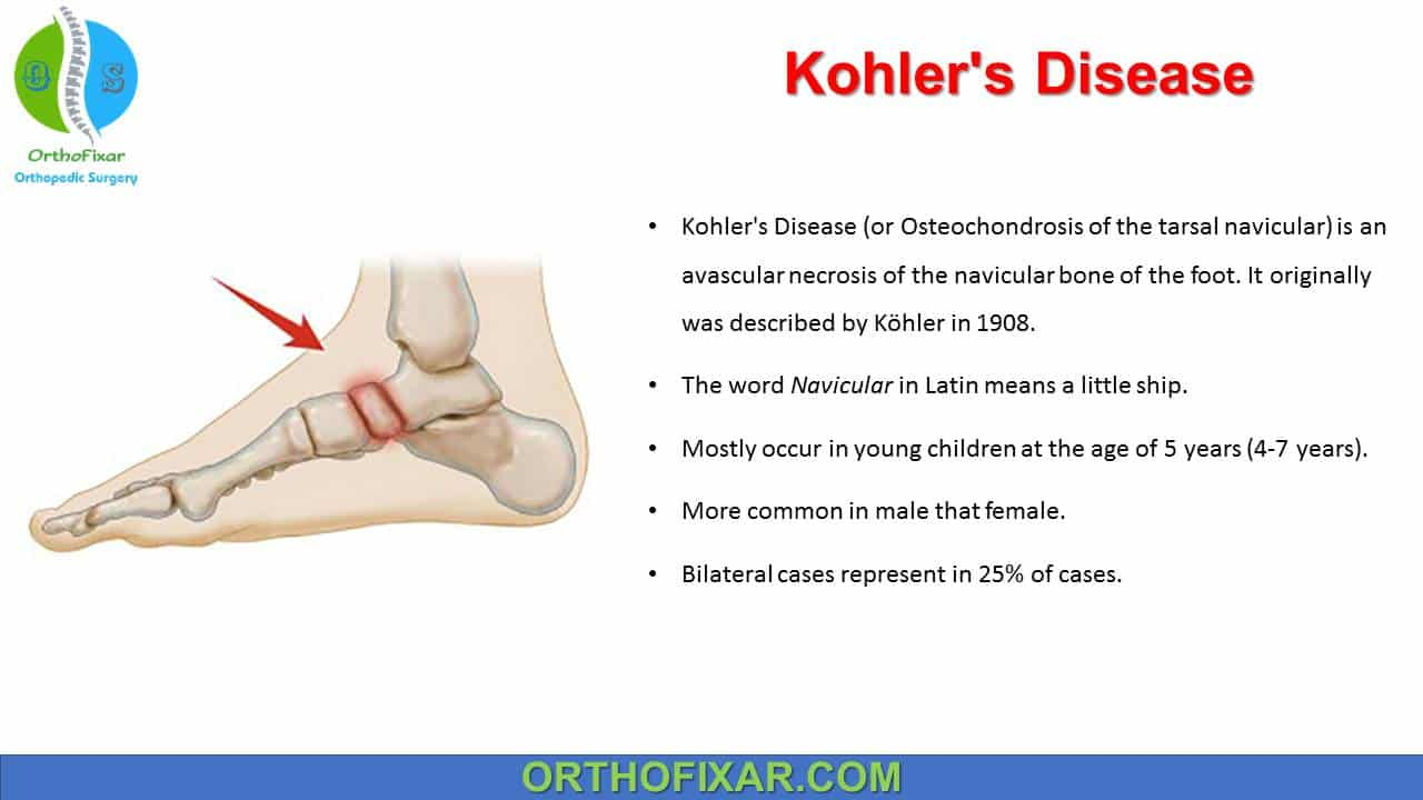 Kohler's Disease
