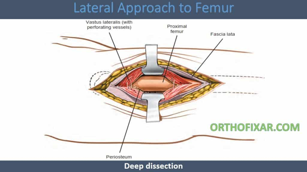 Lateral Approach to Femur
