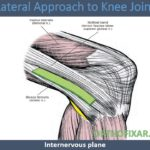 Lateral Approach to Knee Joint