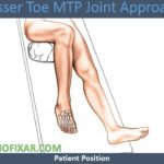 Lesser Toe MTP Joint Approach
