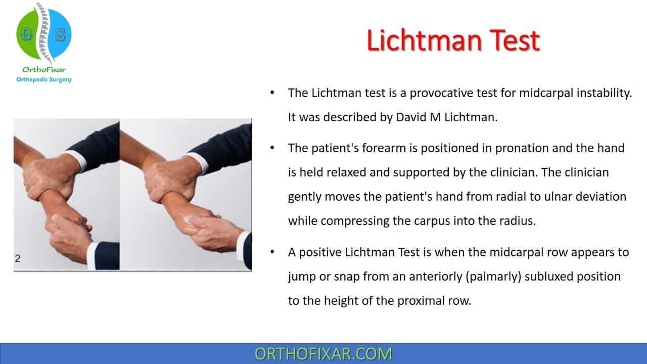 Lichtman Test Midcarpal Instability