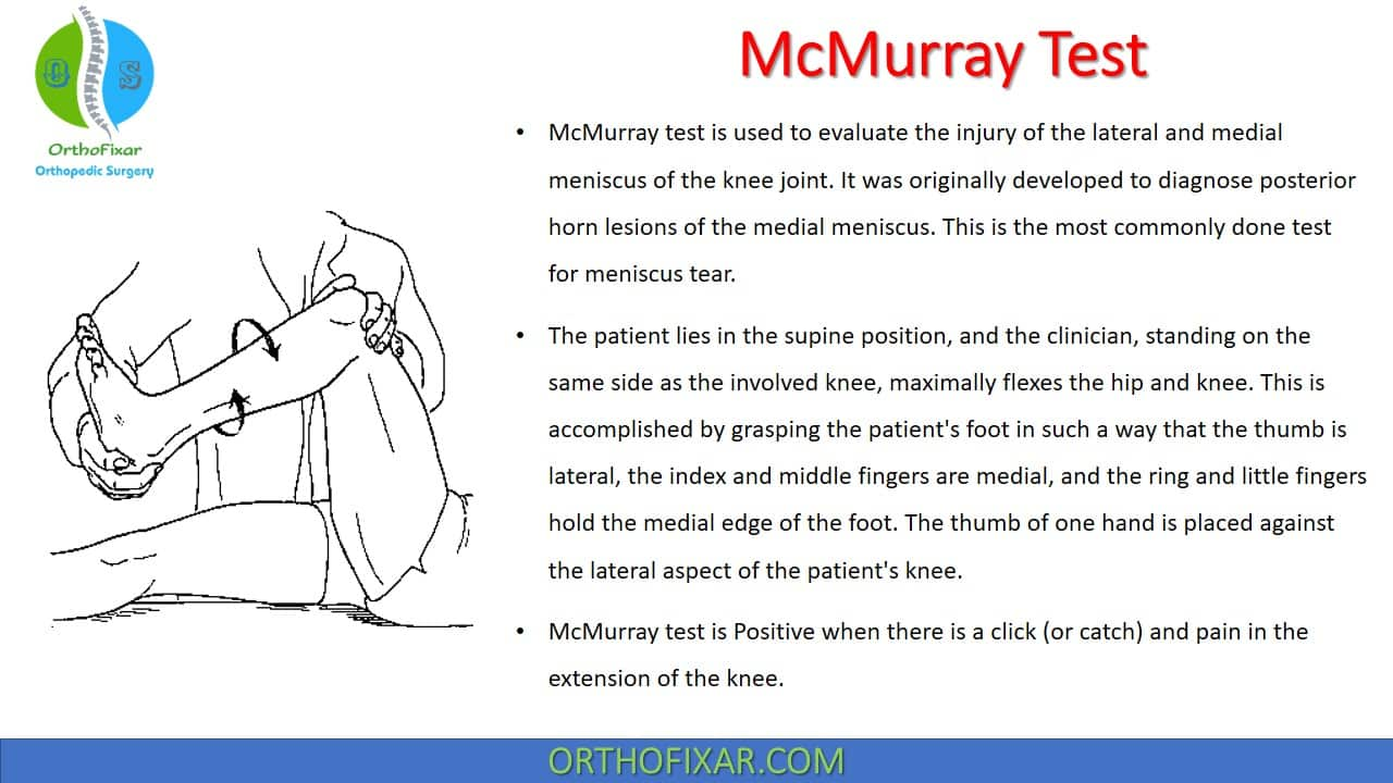McMurray Test | Meniscus Tear