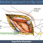 Medial Approach to Hip Joint