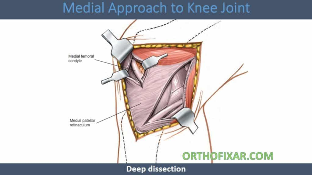 Medial Approach to Knee Joint