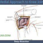knee Medial Approach