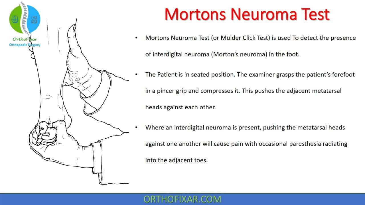 Mortons Neuroma Test