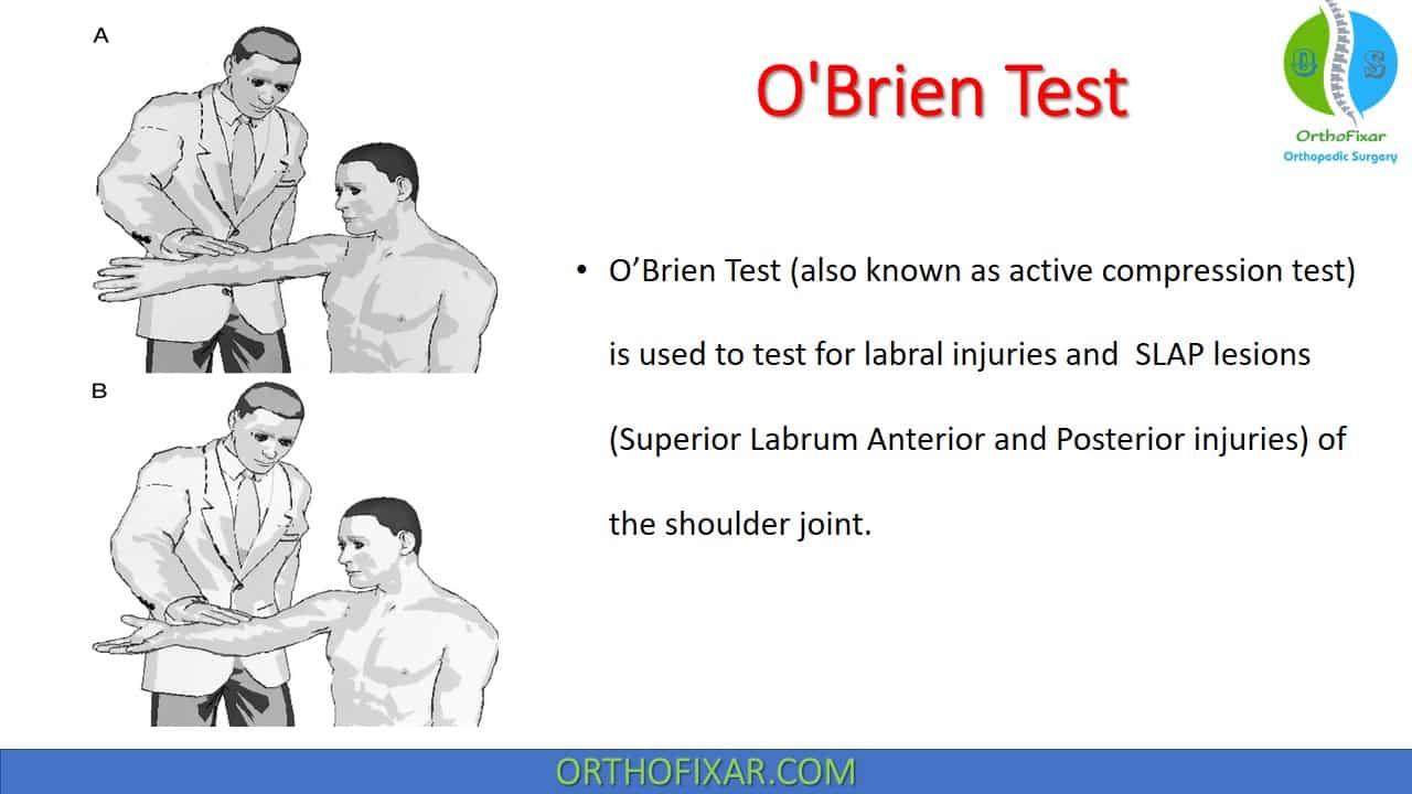 O'Brien Test