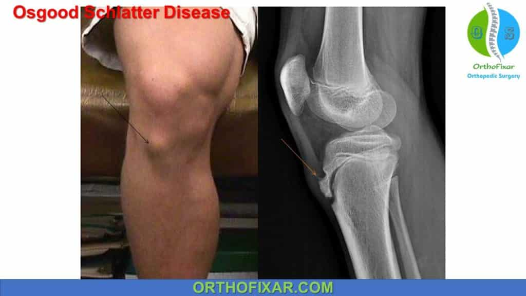Osgood Schlatter Disease symptoms