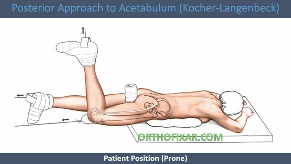 Posterior Approach to Acetabulum