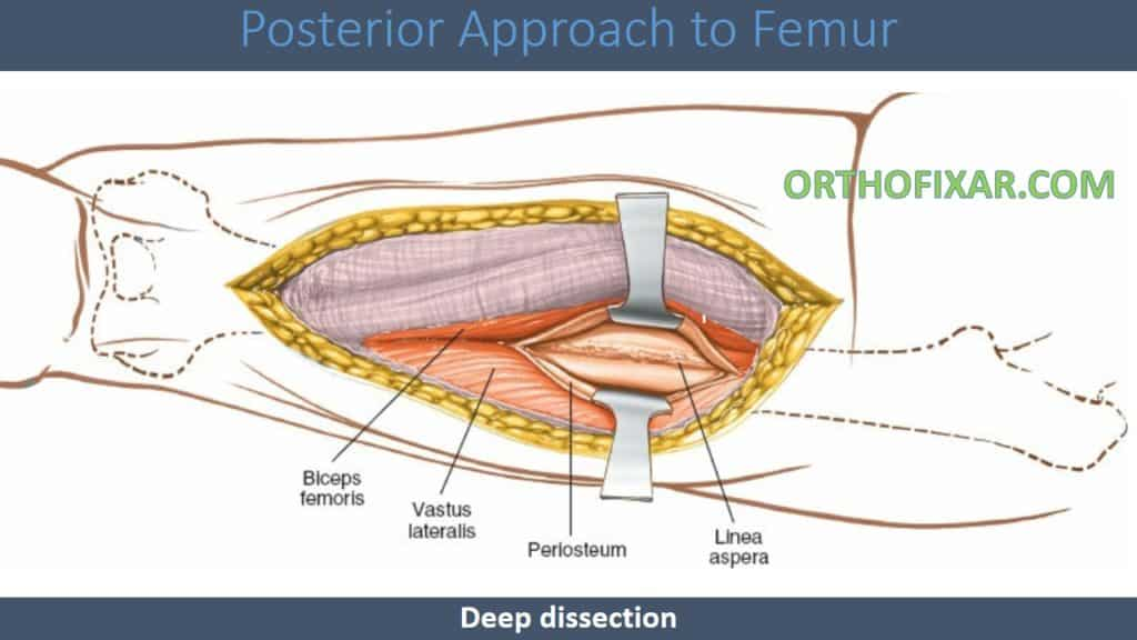 Posterior Approach to Femur