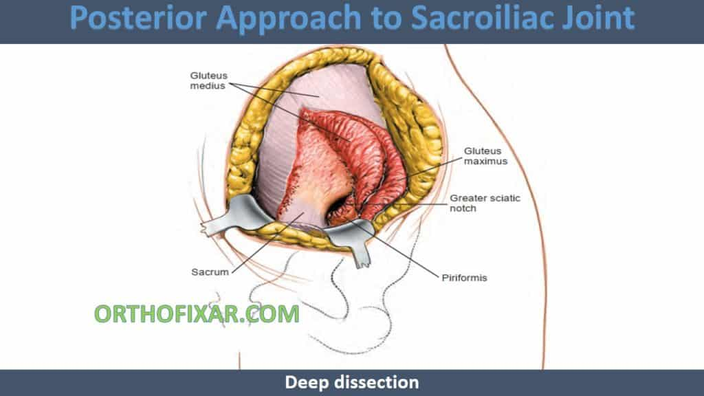 Posterior Approach to Sacroiliac Joint