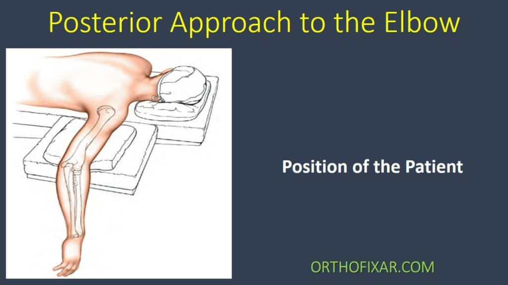 Posterior Approach to the Elbow
