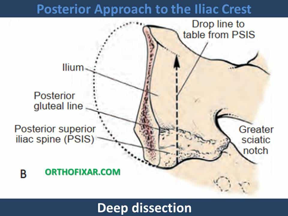 Posterior Approach to the Iliac Crest