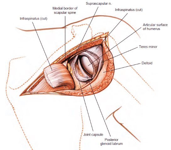 Posterior Approach to the shoulder