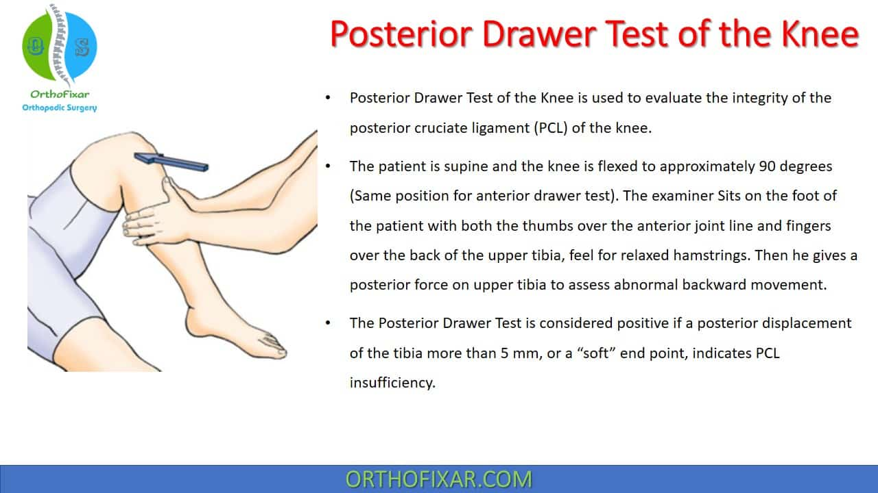 Posterior Drawer Test of the Knee